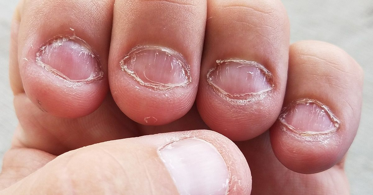 Care Your Nails