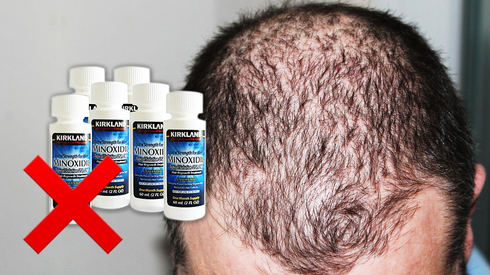 Stopping Hair Loss